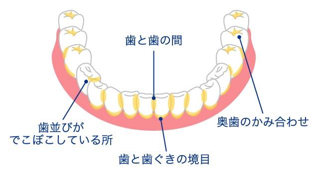 歯垢(プラーク)が溜まりやすい部分