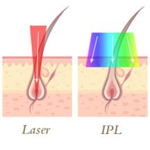 レーザー光とIPL