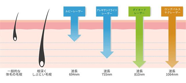 レーザーの波長と到達深度