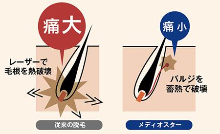 蓄熱式脱毛器の原理