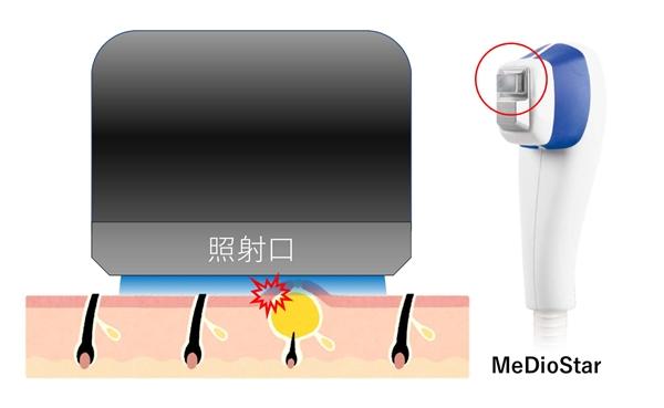 レーザー脱毛器 照射口接触式